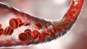 Расстройство кровообращения