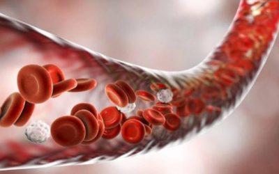 Расстройство кровообращения (Часть 2)